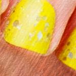 От чего желтеют ногти на руках