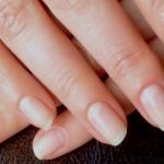 Продольные полоски на ногтях: что это значит?