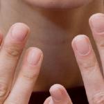 Продольные трещины на ногтях рук (посередине, по краям)