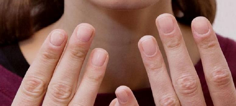Продольные трещины на ногтях