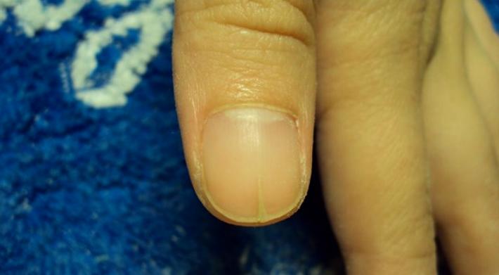 Почему трескаются ногти на руках лечение