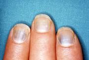 Черные полосы на ногтях