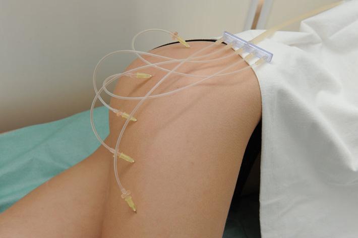 Мезотерапия и озонотерапия