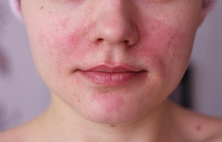Шелушение и покраснение кожи на лице лечение 44