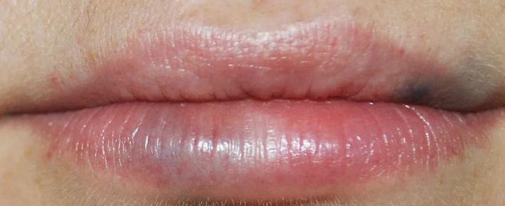 Отек губы