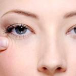 Как избавиться от морщин вокруг глаз (17 народных рецептов, 14 профессиональных способов)