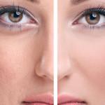 17 способов почистить поры на лице
