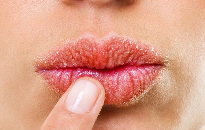 Сухая кожа губ
