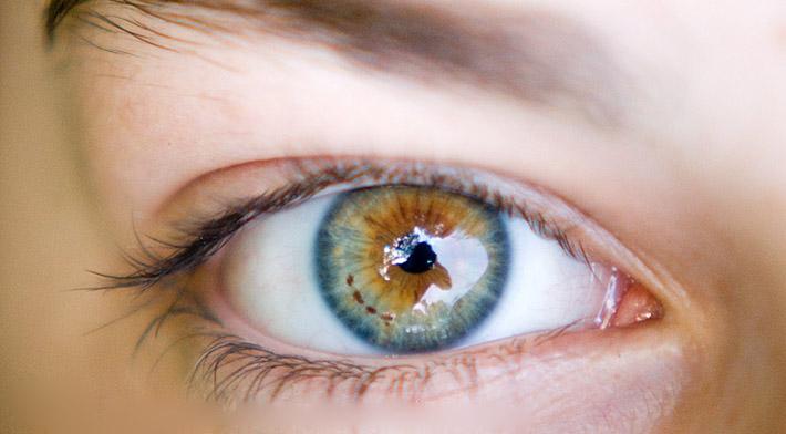 Изменение цвета глаз при патологиях
