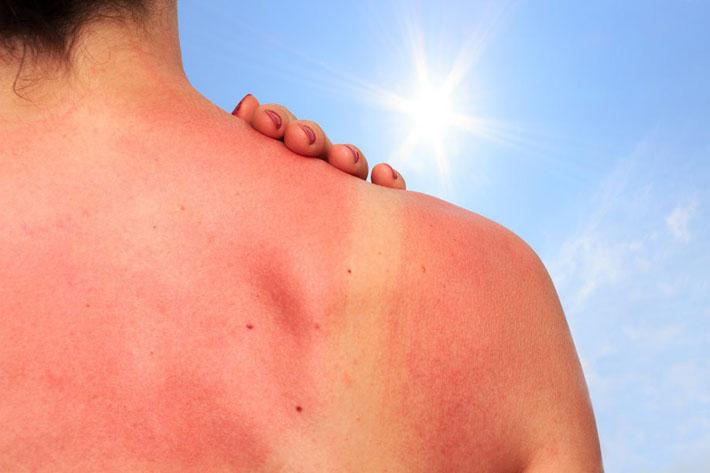 Обгорела кожа на солнце