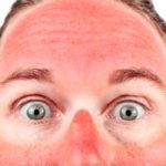 Солнечный ожог на носу