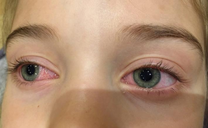 Аллергия на наращивание ресниц, что вызывает и как предупредить