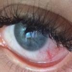 Что делать при ожоге глаз после наращивания ресниц