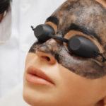 Лазерный карбоновый пилинг лица и тела